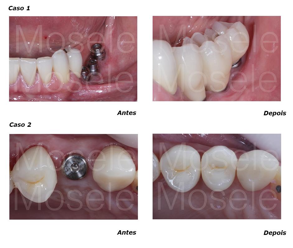 Posteriores - implante